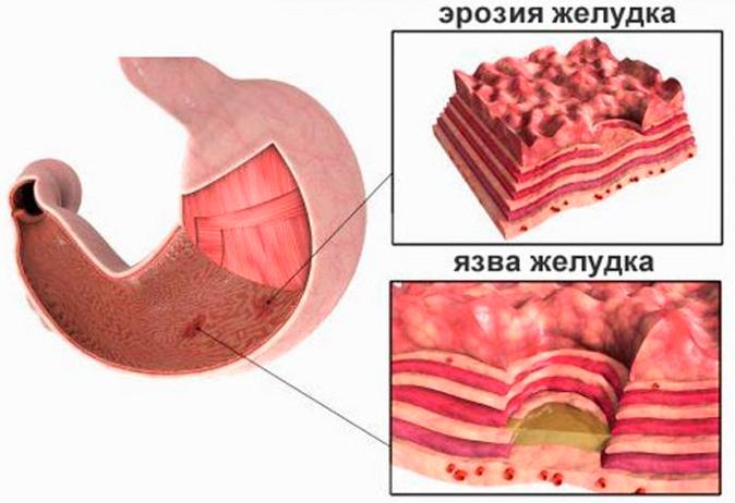 фестал при повышенной кислотности желудка